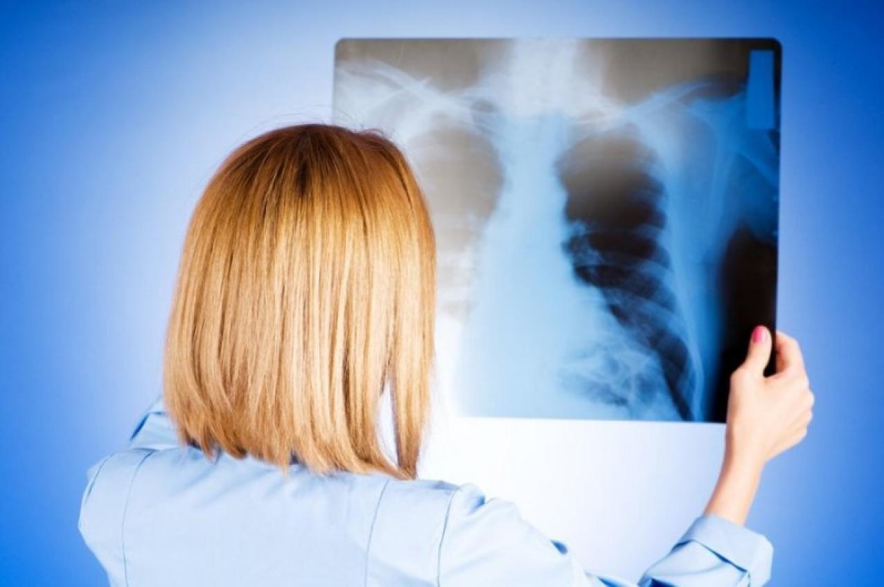 Дружківка: Лише два пацієнта з пневмонією лікуються наразі в медичних закладах міста , фото-1